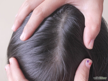 670px-Get-Rid-of-Head-Lice-Overnight-Step-6